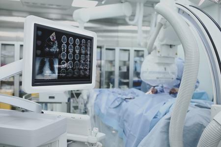 先進的技術,手術過程在監視器上病人的測試集合。 版權商用圖片