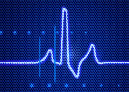 medical technology: Medical technology element of cardiomonitor. Stock Photo