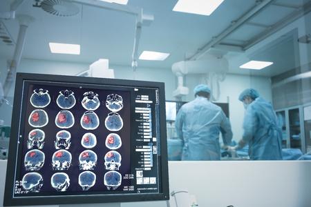 엑스레이 모니터링하에 뇌 수술.