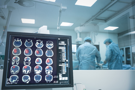 Surgery on the brain under X-ray monitoring. Stock Photo