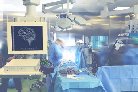 medical technical equipment: Monitoring brain activity during surgery.