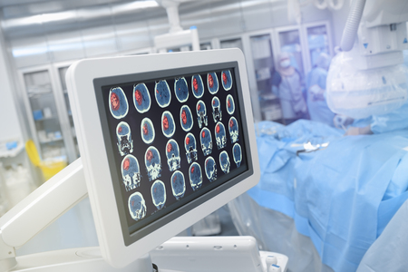 Head scan on the monitor in operating theatre.