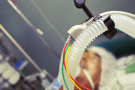 Equipo de respiración en la unidad de cuidados intensivos. Foto de archivo