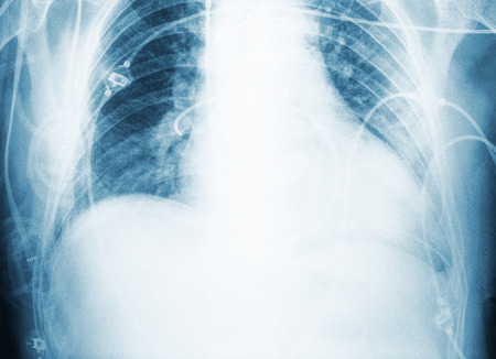 X-ray scan of patient`s chest after surgery.