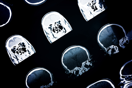 Ct-scan of the human head for medical or scientific background 版權商用圖片