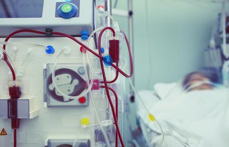 Maquinaria de hemodiálisis en el proceso de trabajo. Foto de archivo - 76794530