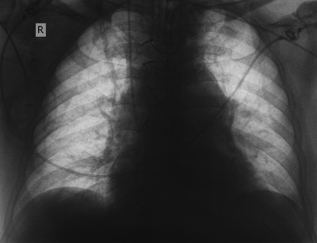 R-control of patient with lung disease.