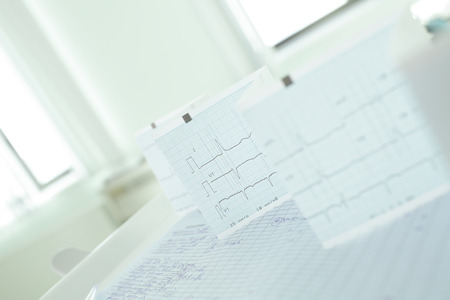 arrhythmias: Medical records and ECG-tape Stock Photo