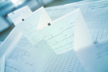 ECG-tape against the backdrop of the hospital ward.