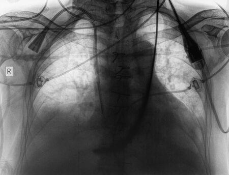X-ray as a medical background. 版權商用圖片