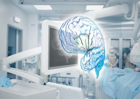 Modern monitoring equipment in the operating room. 版權商用圖片