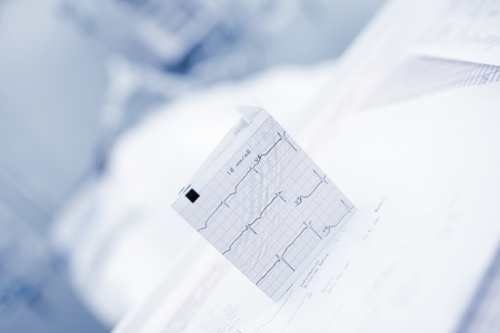 ECG chart on the blurred background of hospital ward.