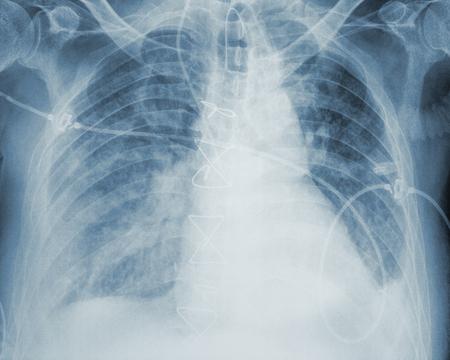 Image of an X-ray analysis.