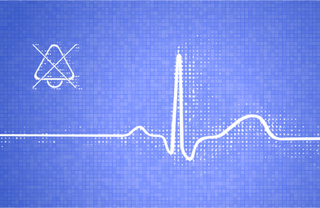 heart monitor: Complex of cardiac contraction (ECG) on a cardiogram with scattered monitor pixels as a medical scientific abstract background