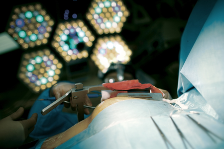 Unusual view of surgeons work.