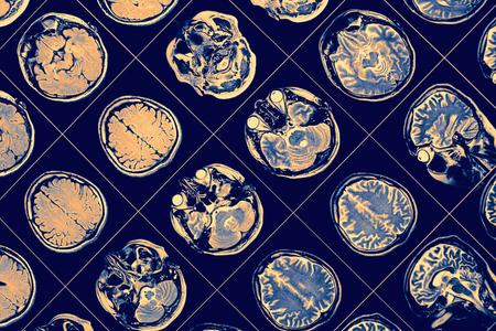 RM imagen del cerebro humano Foto de archivo