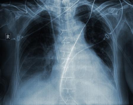 X-ray image of human ribcage.