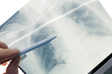 Doctor inspecting patients x-ray film.