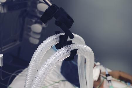 Condensed vapor on the patient breathing tube. Standard-Bild