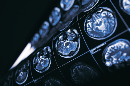 MRI of brain, concept of the mysteries of the human mind. Stock Photo