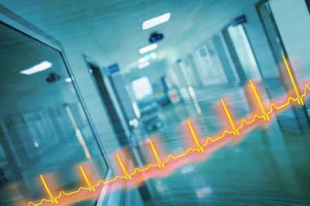 心電図ライン、病院廊下、救急医療の概念。 写真素材