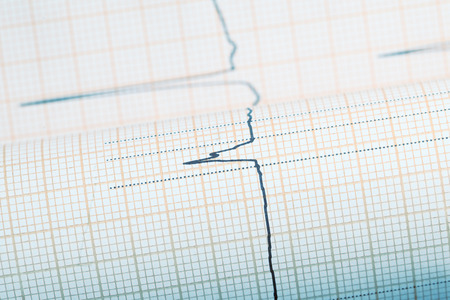 ecg complex line on the plotting paper stock photo picture and
