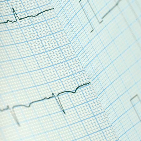 Bended ECG paper as a medical background.