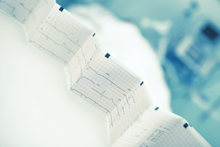 Folded ECG trace in the background of patient bed. Stock Photo