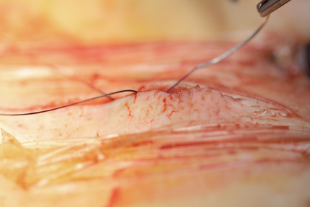 Surgical suture of the patient wound.