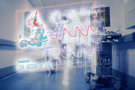 Projection of the heart monitor in hospital hallway on the background of walking workers.