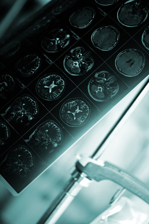 MRI film of patients head in the hospital room.