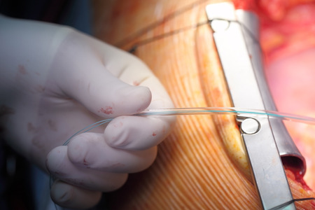 Surgeons hand, which performs manipulation in the operating wound.