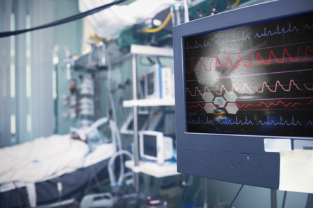 Patient in the intensive care department after severe surgery. Stock fotó