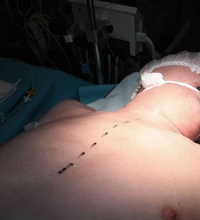 Marking on the patients skin for surgery. 版權商用圖片