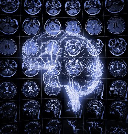 Luminous drawing of human brain on the background of human head scan. 版權商用圖片