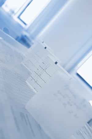 Bended ECG paper on the doctors table against the window. 版權商用圖片