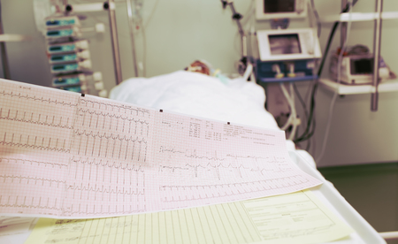 ECG of the patient in serious condition in the ICU. Stock fotó