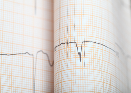 ECG graph paper as a health background with space for your insertion.