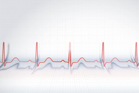 Red line of ECG chart on the background of bended plotting paper, vector illustration. Ilustração