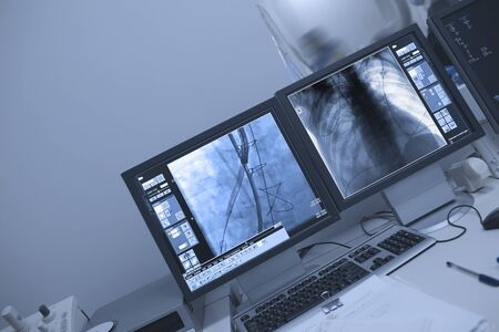 X-ray control of patient thoracic cavitywith advanced technique during surgical procedure.