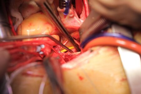 Open heart with drainage tubes and instruments inside close-up during surgery.