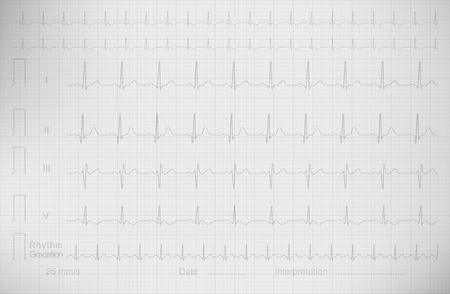 ECG drawing on the square paper, vector image.