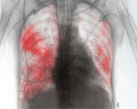 X-ray image of patient with lung inflammation in the early post-surgery period.