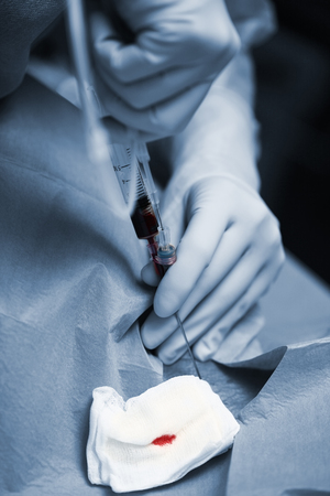 Medical doctor hands with blood syringe during catheterization of patient vessel before surgery.