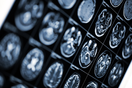 Medical background with MRI scan image of human head. Stock Photo