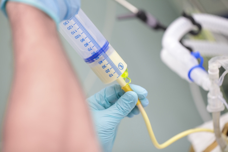 Process of feeding the patient through the tube in critical condition.