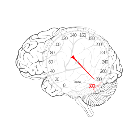 Red arrow of blood pressure dial on the brain, vector image.