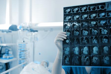 Doctora mira la imagen de exploración de los órganos torácicos del paciente en la habitación del hospital. Foto de archivo