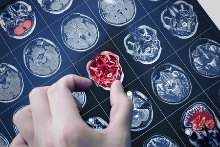 MRI-scanbeeld van de hersenen van de patiënt met de hand van de arts die naar het probleem wijst. Stockfoto