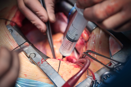 Surgical treatment of coronary heart disease